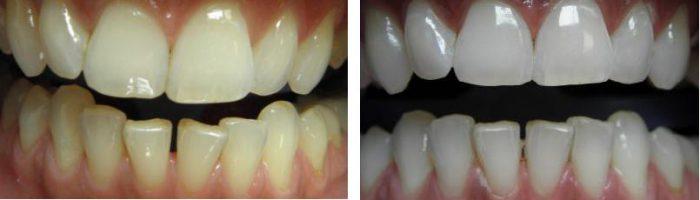 wybielanie zębów Beyond przedipo
