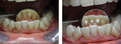 wybielanie zębów Beyond_przed ipo