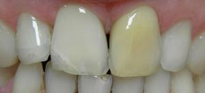 wybielanie zębów martwych
