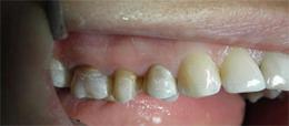 licówki zęby przed