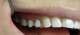 licówki kompozytowe zęby pozabiegu