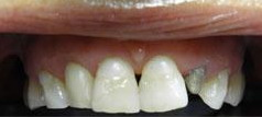 zęby przedlicówkami