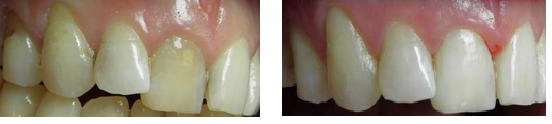 ząb martwy przebarwiony wybielanie przedipo