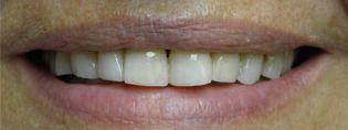 zęby licówki kompozytowe