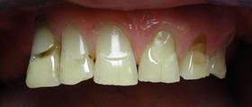 zęby przedlicówki kompozytowe