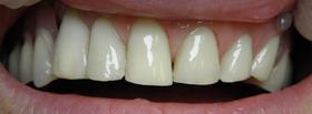 zęby policówki kompozytowe