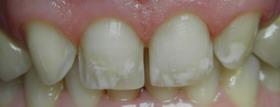 preparacja zębów
