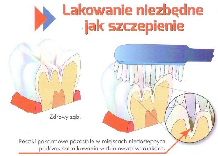 lakowanie zębów