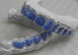 wybielanie zębów szyny nakładowe