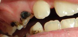 lapisowanie zębów