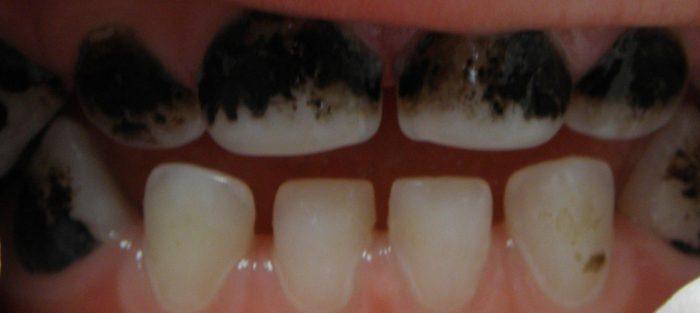 lapisowanie zębów mlecznych
