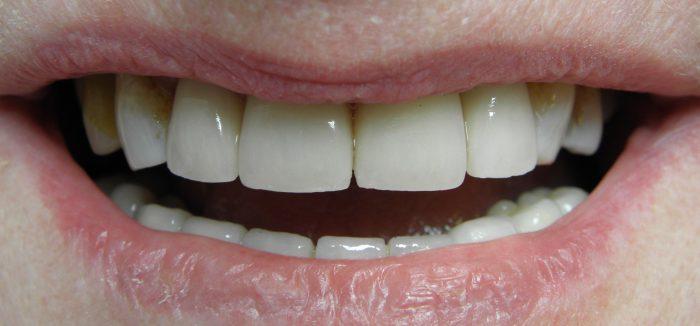 ewa uśmiech 2