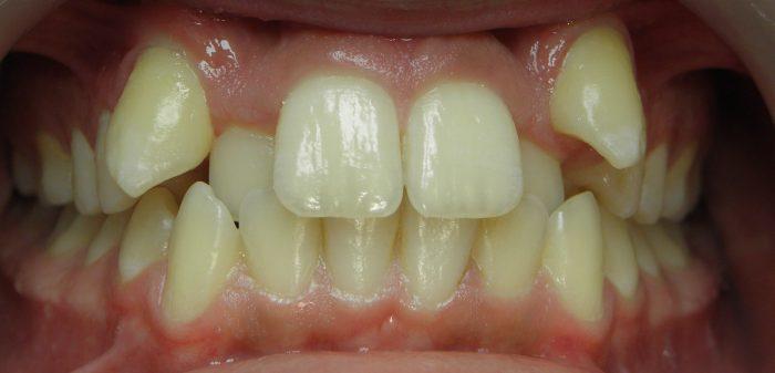 brak miejsca dla zęba