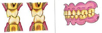 bruksizm zębów przednich