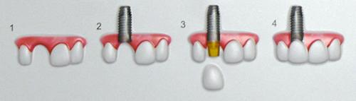 chirurgia wszczepiane implanty