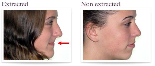 Ortodoncja bez ekstrakcji