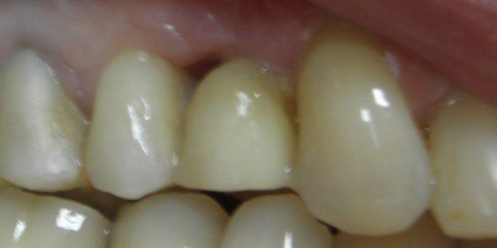 Most tymczasowy podczas leczenia implantologicznego.