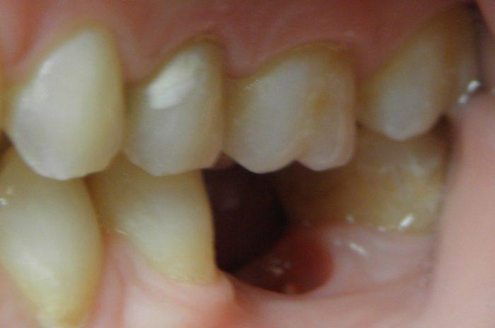 Łoże implantu