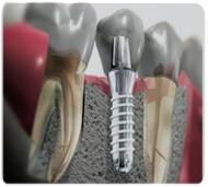 implant wkości