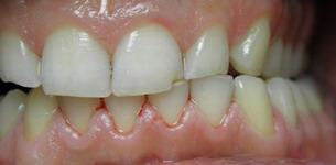 laterotruzja lewa starcie zębów