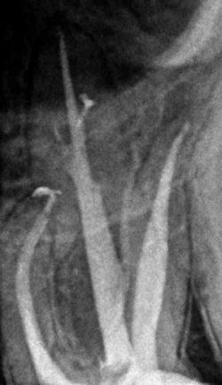 leczenie podmikroskopem