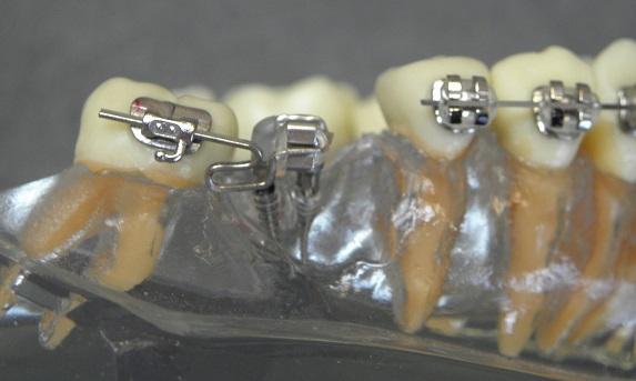 mini śruby ortodontyczne
