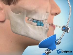 ortodontyczna maska twarzowa