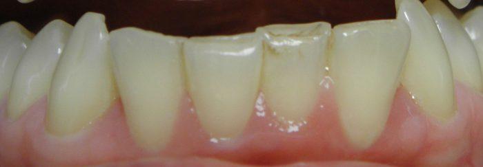 Przedleczeniem -stłoczenie dolnych zębów