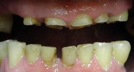 starcie patologiczne zębów