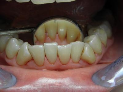 po piaskowanie zębów ADENTIS