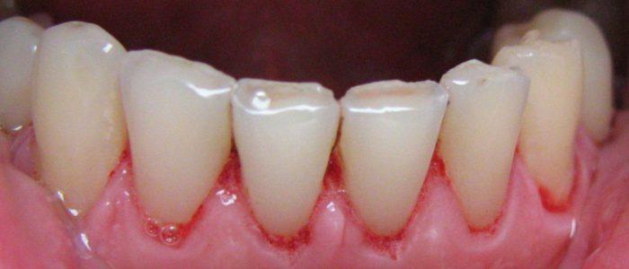 po zabiegu piaskowania zębów