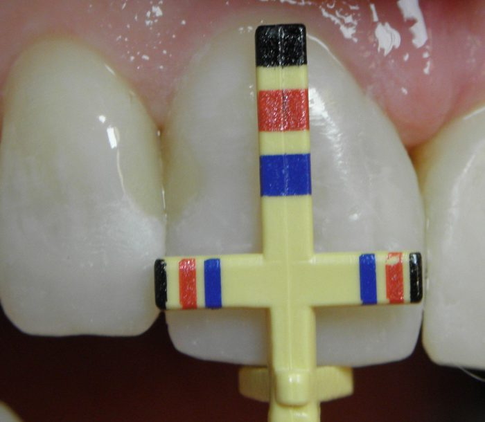 proporcje zębów
