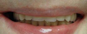 nowy uśmiech pacjentki