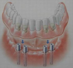 Proteza dolna naimplantach