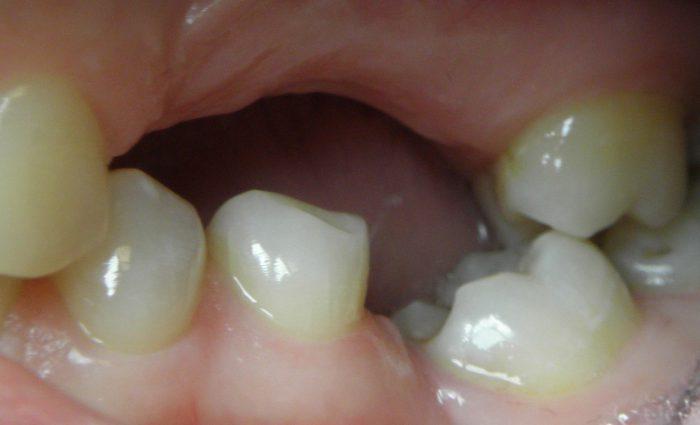 Przechylenie zęba wkierunku luki