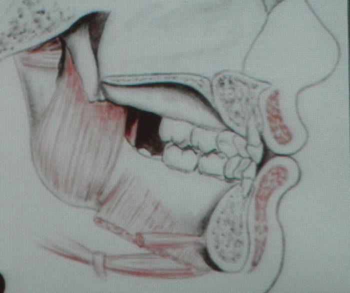 mięsnie twarzo czaski