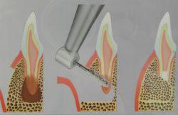 resekcja wierzchołka