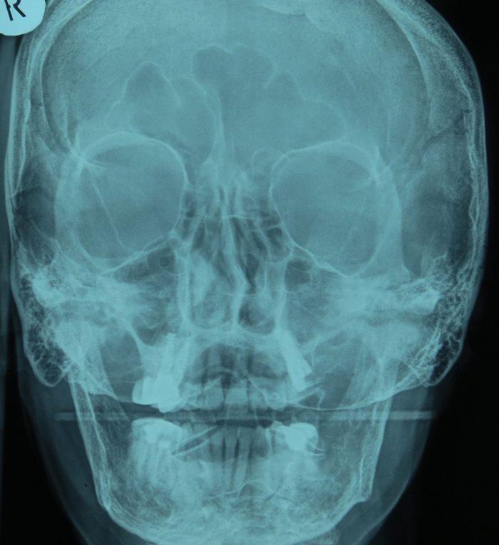 rtg PA czaszki