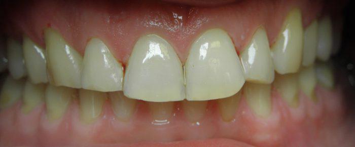 starcie zębów