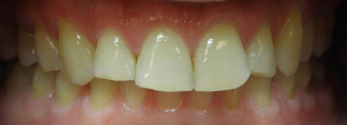 starcie zębów odbudowa kłów