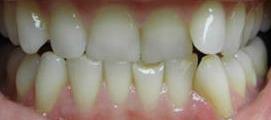 startcie zębów brak prowadzenia