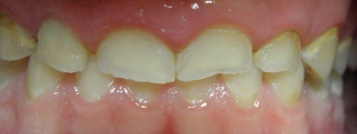 starte zęby choroba cywilizacyjna