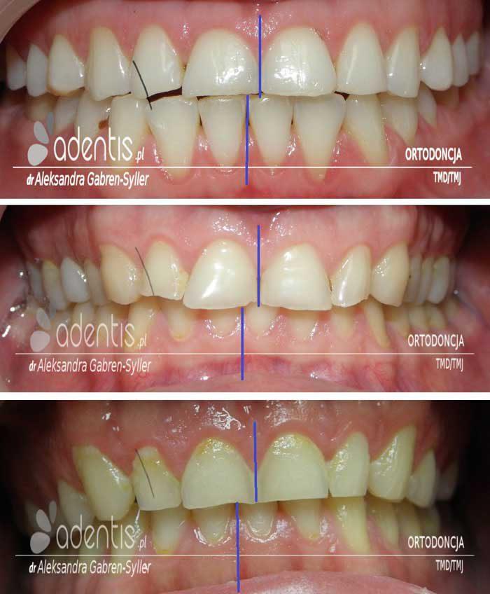 starte zęby
