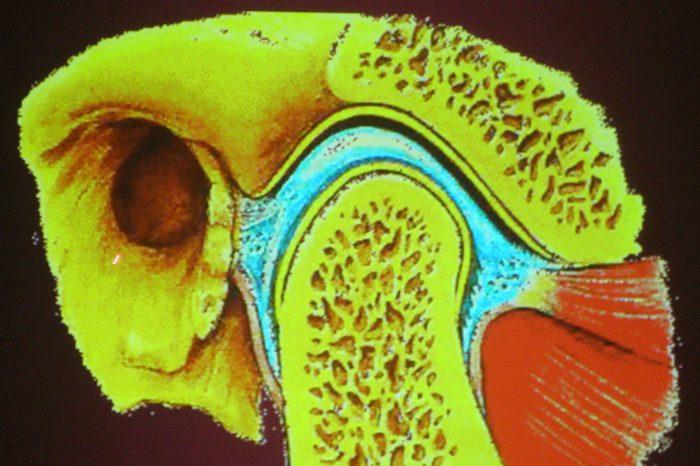 staw skroniowo-żuchwowy (otwór słuchowy)