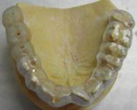 szablon implantologiczny