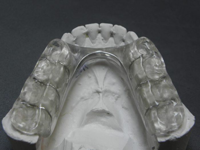 szyna NTI