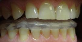 szyna relaksacyjna starte zęby