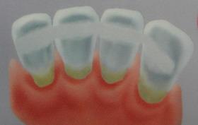 szynowanie zębów