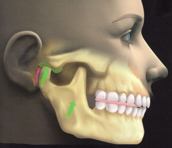 uraz stawu skroniowo-żuchwowego