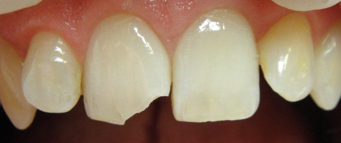 uraz zęba